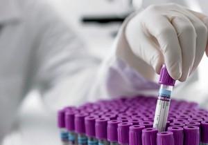 СибГМУ и «Меднорд-Техника» разработают прибор для экспресс-оценки свертываемости крови